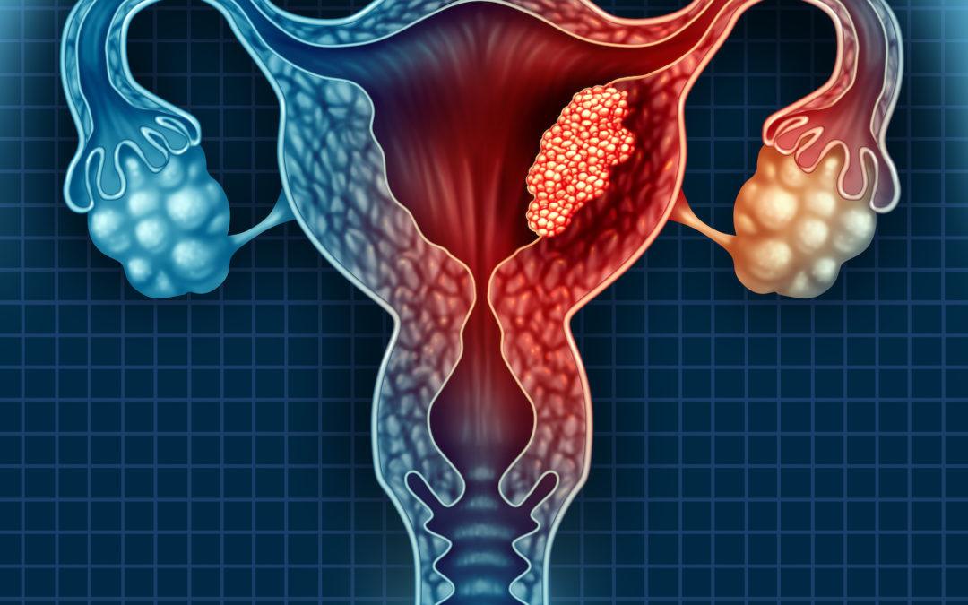 học tiếng anh y khoa online bài cervical cancer