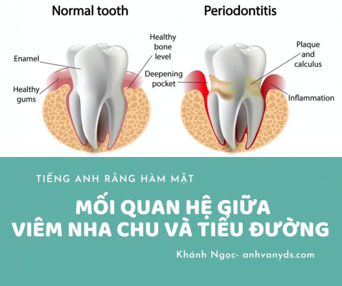 thuật ngữ răng hàm mặt - viêm nha chu