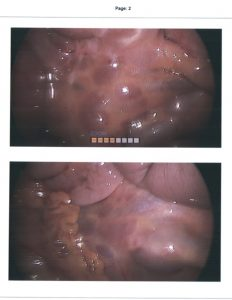 Case 15: causing recurrent small bowel obstruction – gây ra tắc ruột non tái phát