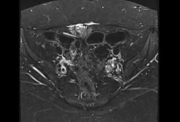 Case 18: involving abdominal wall – liên quan thành bụng