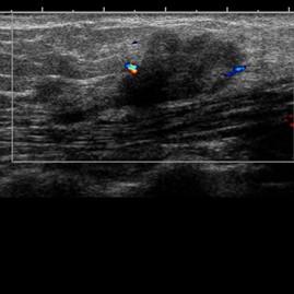 Case 2: in anterior abdominal wall – lạc nội mạc tử cung ở thành bụng trước