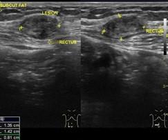 Case 7: scar endometriosis –sẹo lạc nội mạc tử cung